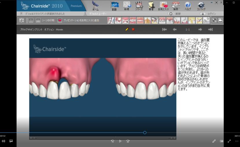 7欠損歯とインプラント(概念) Cブリッジ対インプラントーブリッジVSインプラント オプション