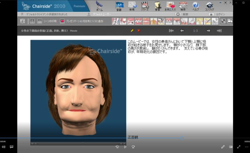 3骨吸収と移植 E顔面の萎縮ー女性の下顔面の萎縮(正面、斜め、側方)